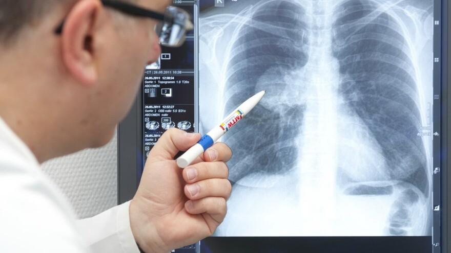 В Сызрани медики сообщают о всплеске детской пневмонии