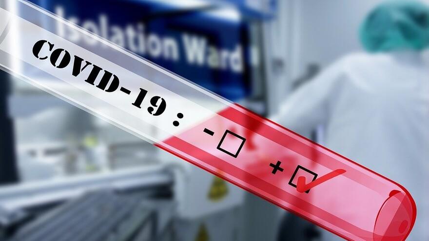В Самарской области выявлено еще 305 больных коронавирусом