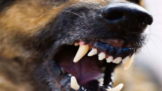 В Чапаевске ребенка искусали собаки