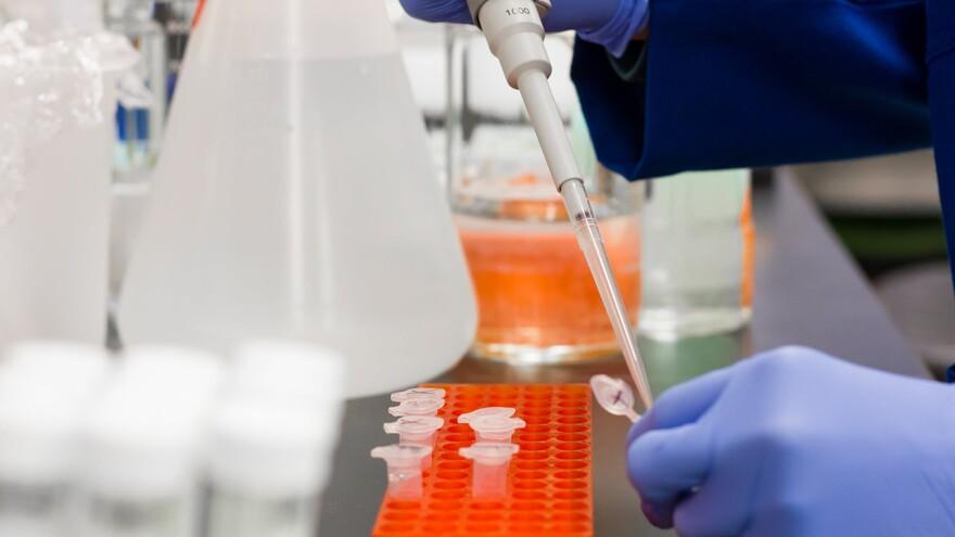 291 человек в Самарской области заболел коронавирусом за сутки